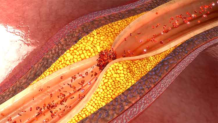 Coronary artery plaque